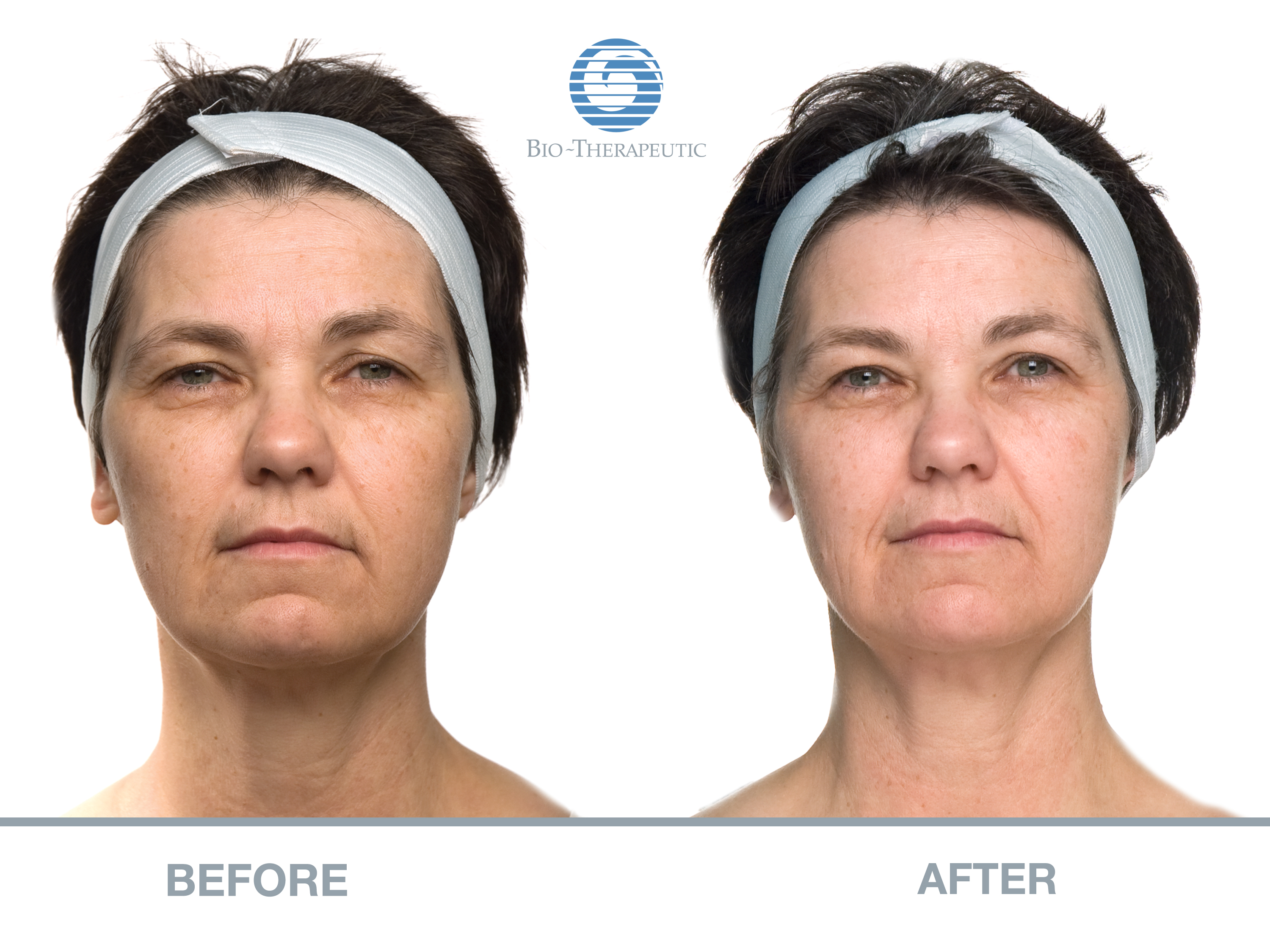 Before and After Bio-Theraputic Facial